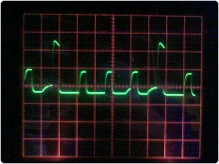 Image_176 2.4.1.11.6. Elektrolízis Impulzusokkal 3