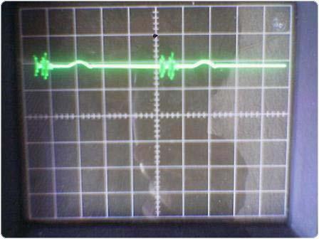 Image_286 2.4.1.11.6. Elektrolízis Impulzusokkal 3